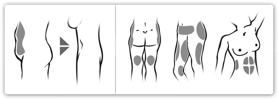 Der Vorher-Nachher-Effekt bei einer Fettabsaugung