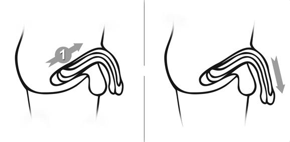 Penis Verlängerung