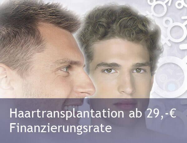 Eigenhaartransplantation günstig in Istanbul