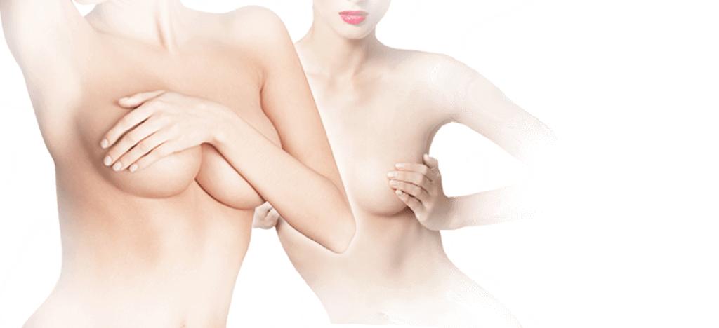Brustverkleinerung in Tschechien