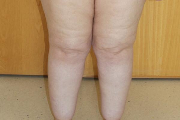 Lipoedema Liposuction